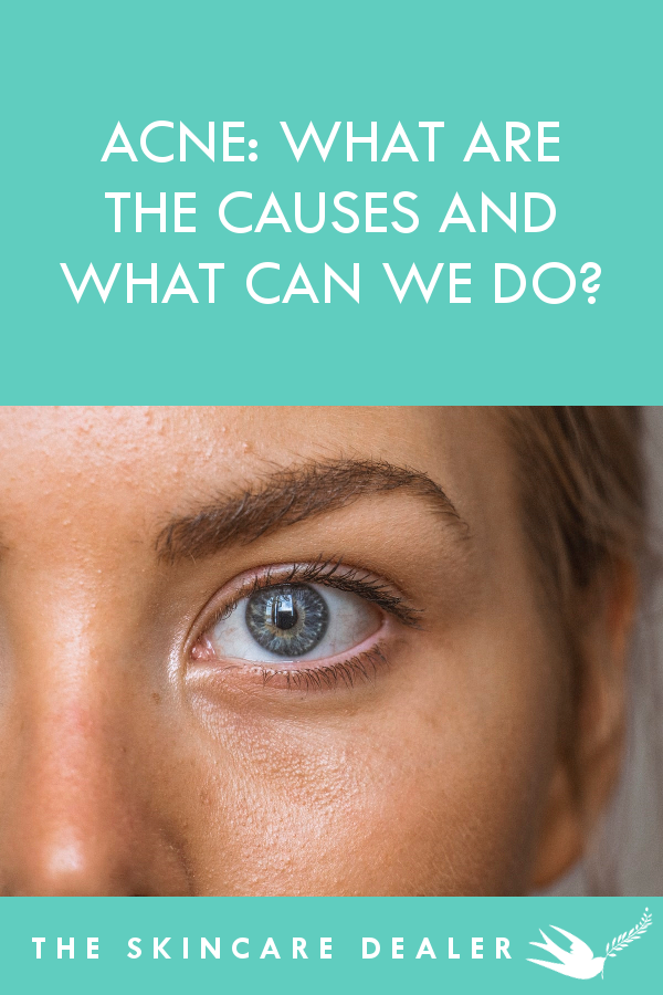 Acne: What are the Causes and What Can We Do?