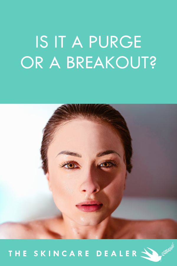 Is it a Purge or a Breakout? | The Skincare Dealer